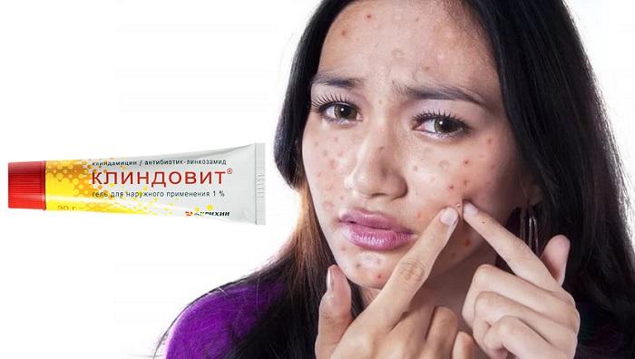 Клиндовит от прыщей: особый препарат для чистой и здоровой кожи!